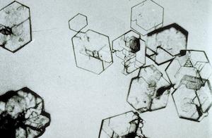 sistein-kristalleri