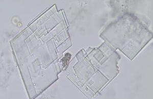 kolestrol-kristalleri