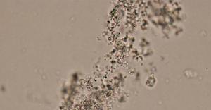 amorf-kristalleri
