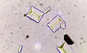uclu-fosfat-kristalleri-veya-struvit