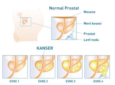 normal-prostat